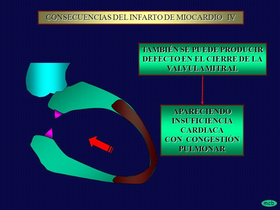 mcb TAMBIÉN SE PUEDE PRODUCIR DEFECTO EN EL CIERRE DE LA VALVULA MITRAL APARECIENDOINSUFICIENCIACARDIACA CON CONGESTIÓN PULMONAR CONSECUENCIAS DEL INF