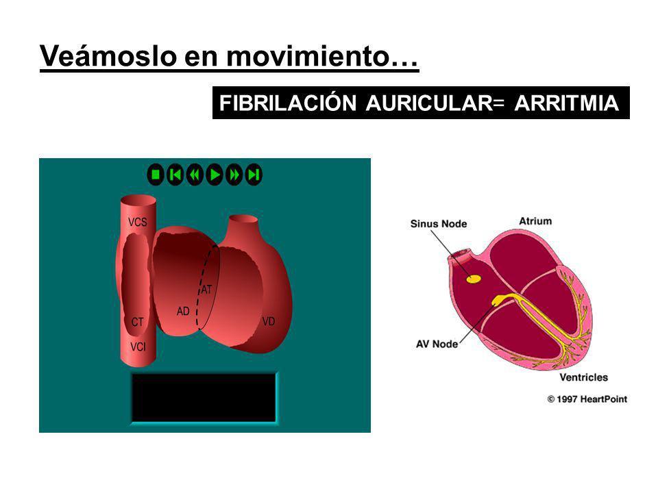 Veámoslo en movimiento… FIBRILACIÓN AURICULAR= ARRITMIA
