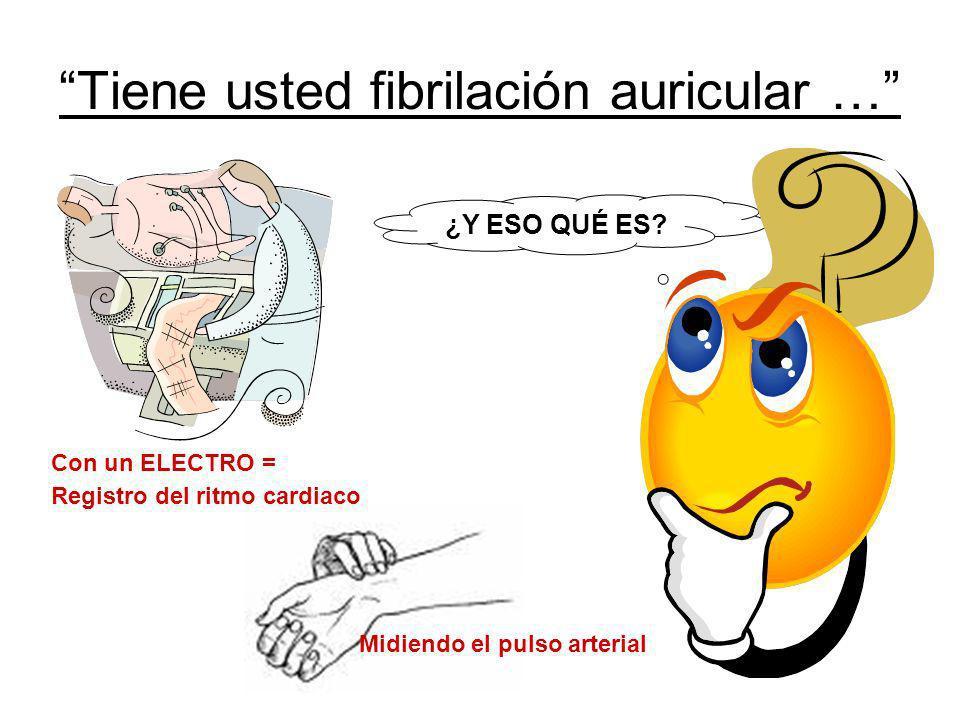 ¿Y ESO QUÉ ES? Tiene usted fibrilación auricular … Con un ELECTRO = Registro del ritmo cardiaco Midiendo el pulso arterial