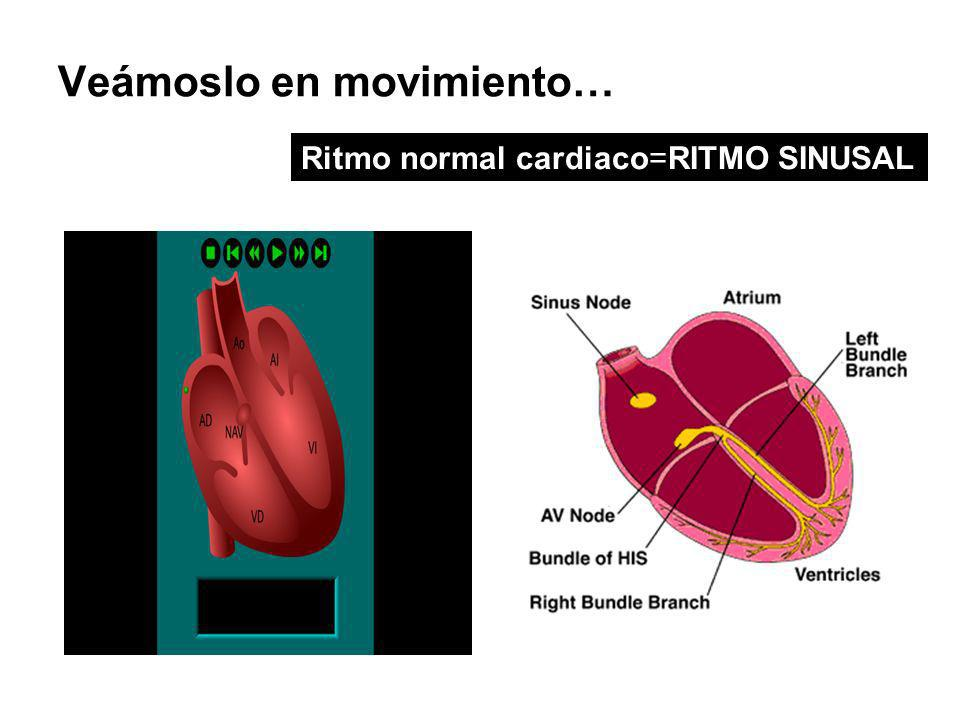 Veámoslo en movimiento… Ritmo normal cardiaco=RITMO SINUSAL