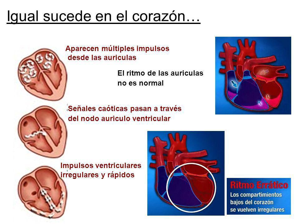 Igual sucede en el corazón… Aparecen múltiples impulsos desde las auriculas Señales caóticas pasan a través del nodo auriculo ventricular Impulsos ven