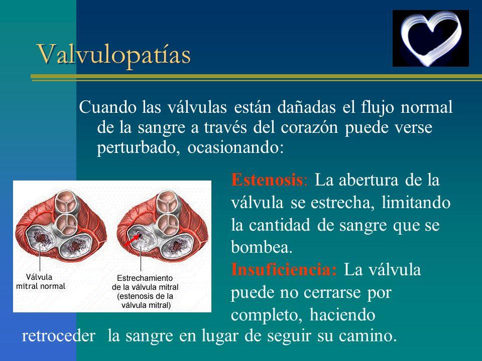 Valvulopatías Cuando las válvulas están dañadas el flujo normal de la sangre a través del corazón puede verse perturbado, ocasionando: Estenosis: La a