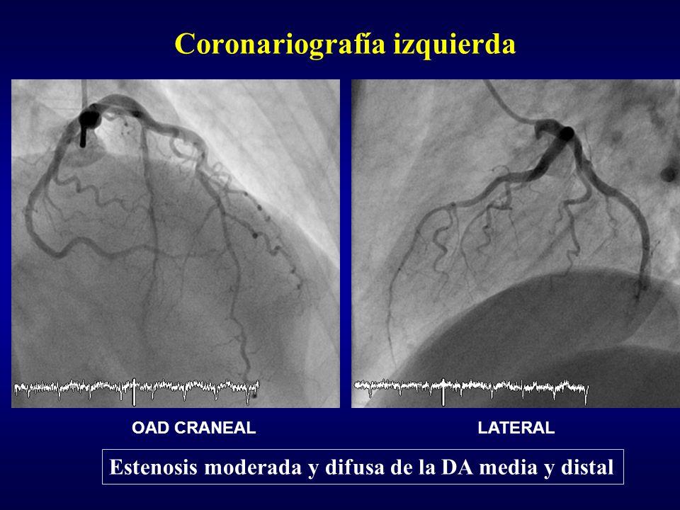 Coronariografía izquierda OAD CRANEALLATERAL Estenosis moderada y difusa de la DA media y distal
