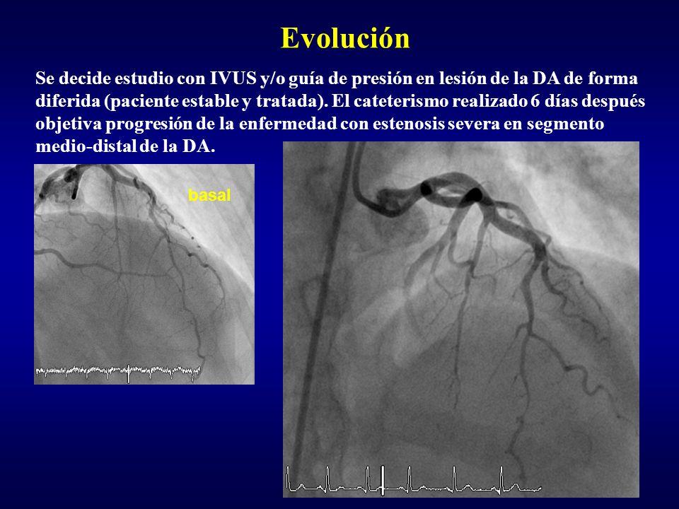 Evolución Se decide estudio con IVUS y/o guía de presión en lesión de la DA de forma diferida (paciente estable y tratada). El cateterismo realizado 6