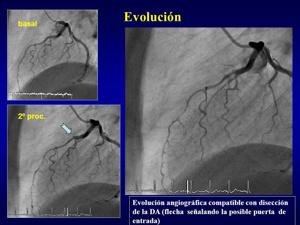 2º proc. Evolución basal Evolución angiográfica compatible con disección de la DA (flecha señalando la posible puerta de entrada)
