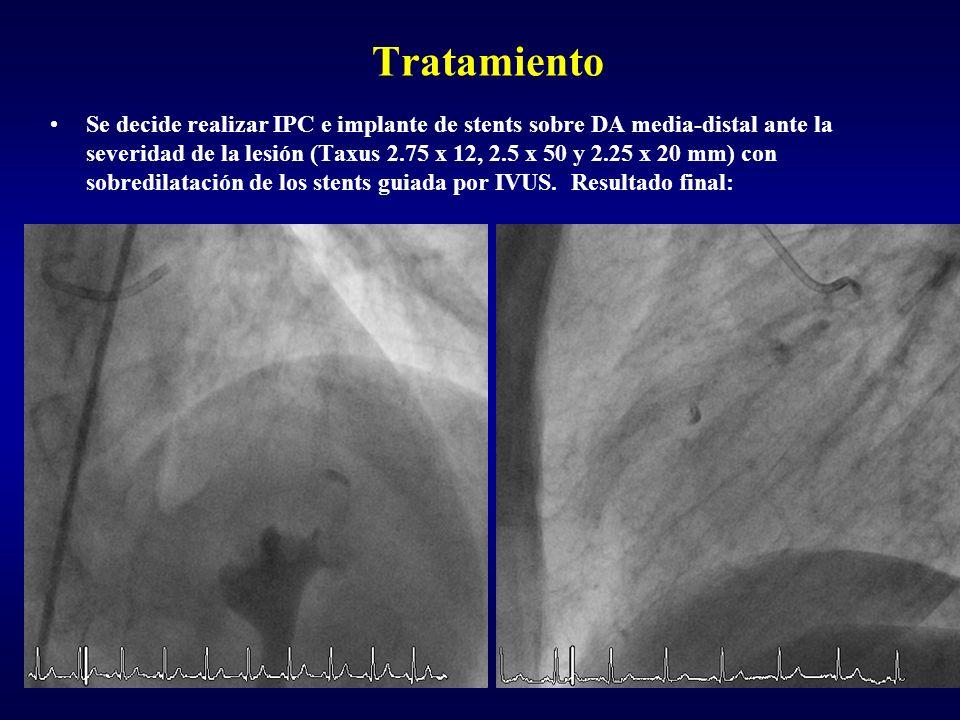 Tratamiento Se decide realizar IPC e implante de stents sobre DA media-distal ante la severidad de la lesión (Taxus 2.75 x 12, 2.5 x 50 y 2.25 x 20 mm