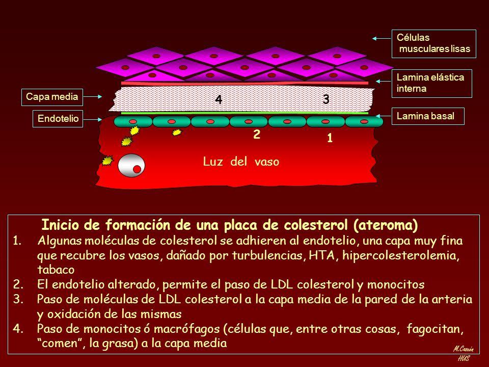 M.Cascón HUS Lamina elástica interna Células musculares lisas Lamina basal Capa media Endotelio Inicio de formación de una placa de colesterol (aterom