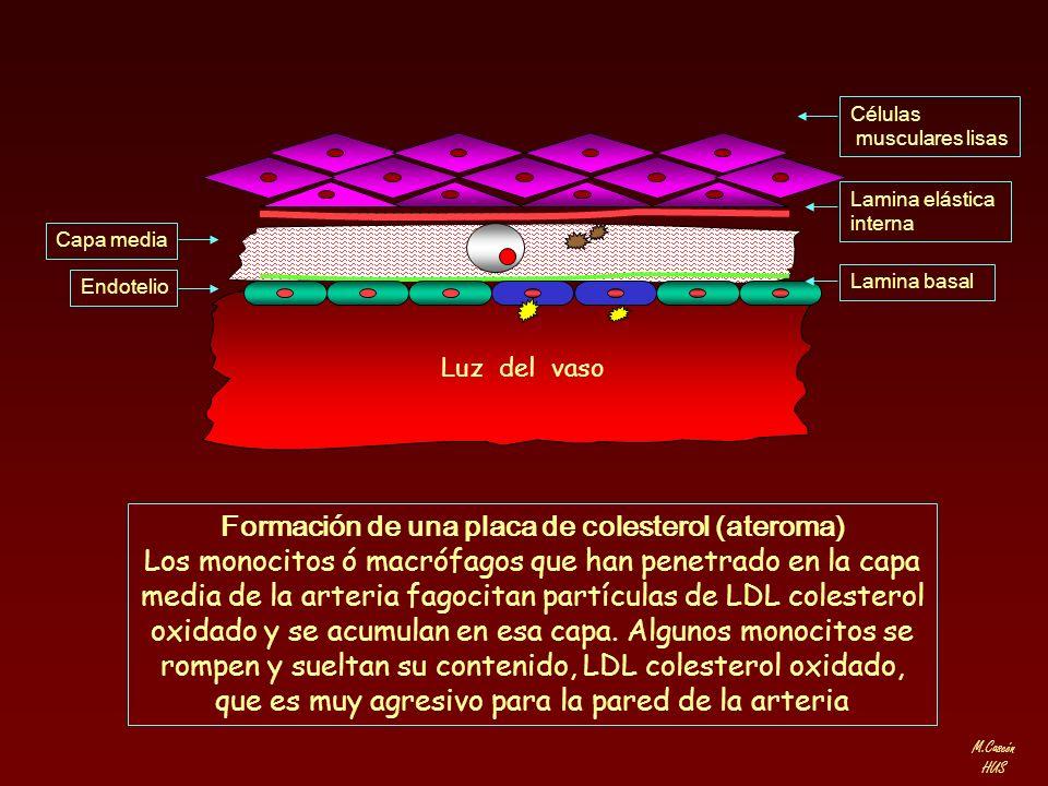 M.Cascón HUS Lamina elástica interna Células musculares lisas Lamina basal Capa media Endotelio Formación de una placa de colesterol (ateroma) Los mon