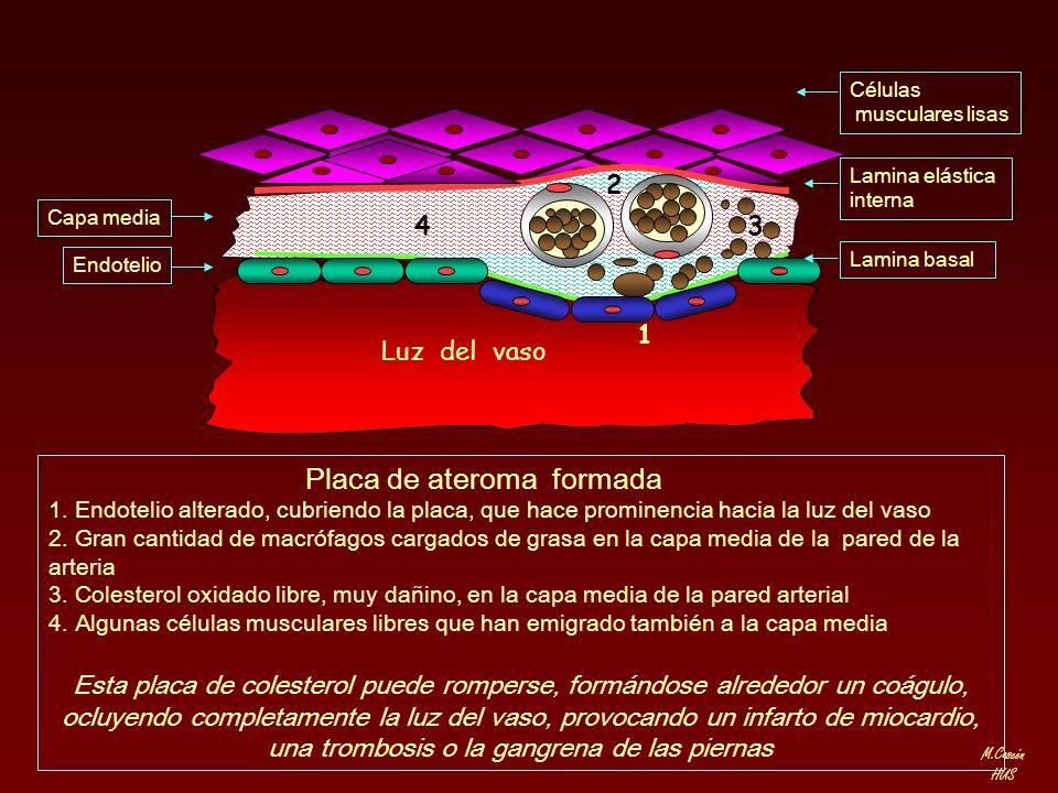 M.Cascón HUS Lamina elástica interna Células musculares lisas Lamina basal Capa media Endotelio Placa de ateroma formada 1. Endotelio alterado, cubrie
