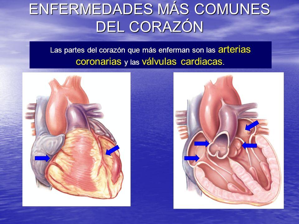 ENFERMEDADES MÁS COMUNES DEL CORAZÓN Las partes del corazón que más enferman son las arterias coronarias y las válvulas cardiacas.