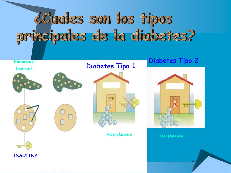 9 Diabetes Tipo 2 Diabetes Tipo 1 Hiperglucemia Páncreas Normal INSULINA