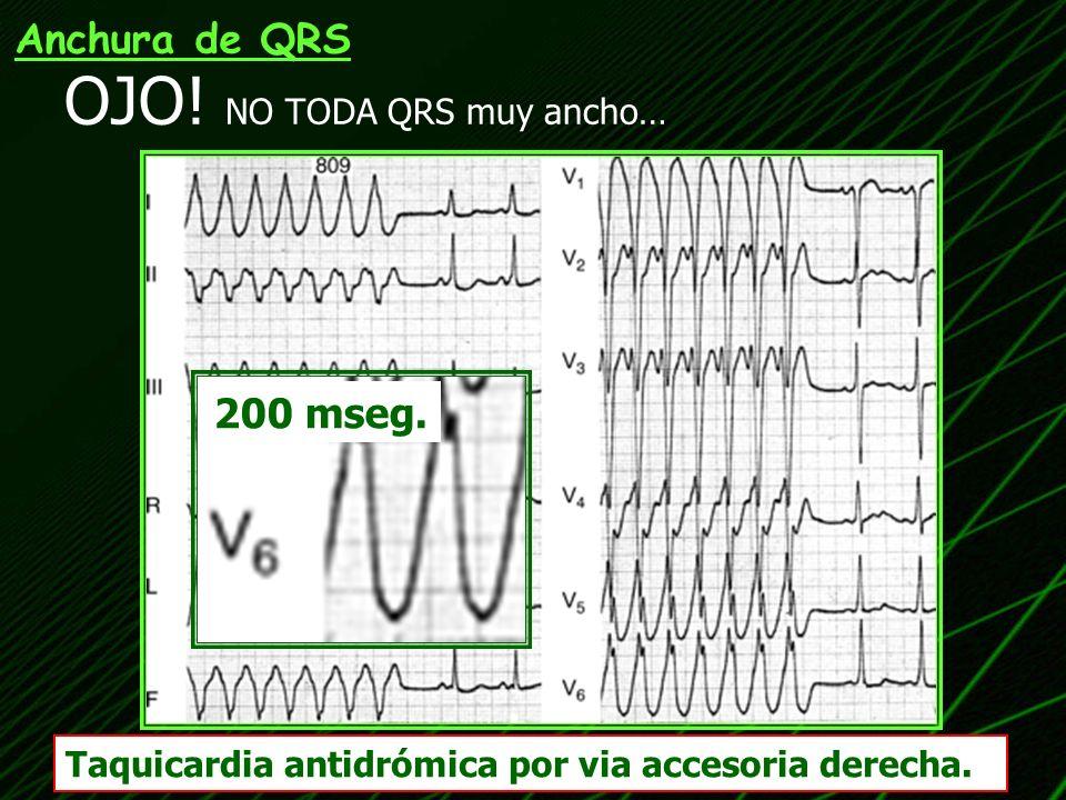 OJO! NO TODA QRS muy ancho… Taquicardia antidrómica por via accesoria derecha. Anchura de QRS 200 mseg.