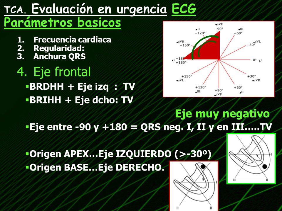 1.Frecuencia cardiaca 2.Regularidad: 3.Anchura QRS 4.Eje frontal TCA. Evaluación en urgencia ECG Parámetros basicos BRDHH + Eje izq : TV BRIHH + Eje d