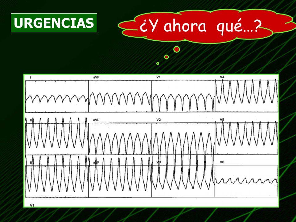 CONCLUSIONES (TCA) ANTE UNA TAQUICARDIA DE QRS ANCHO… NO TEMBLAR!.