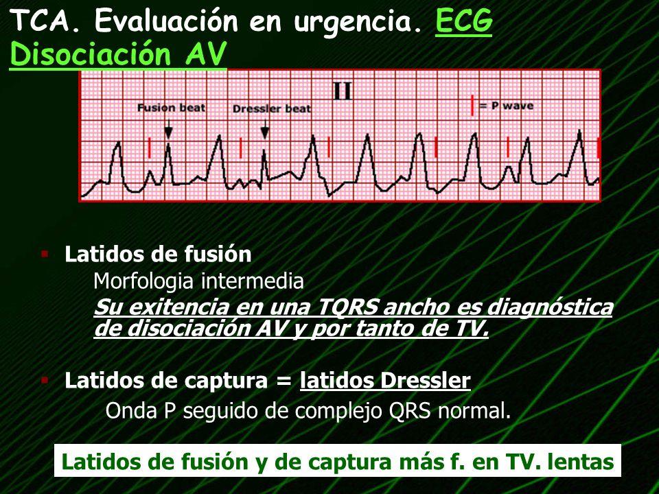 Latidos de fusión Morfologia intermedia Su exitencia en una TQRS ancho es diagnóstica de disociación AV y por tanto de TV. Latidos de captura = latido