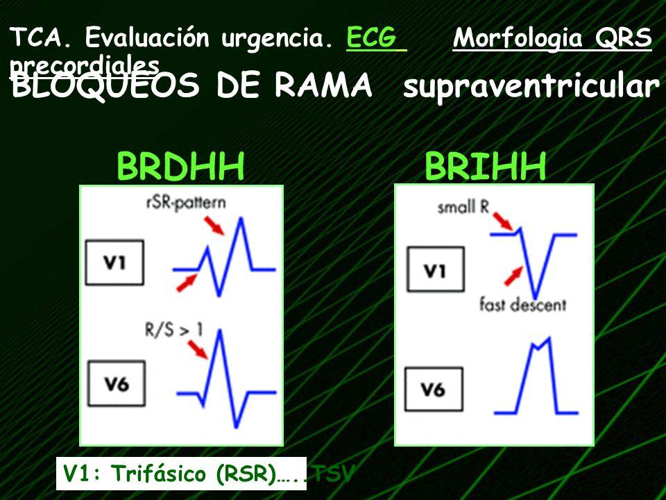BRDHHBRIHH V1: Trifásico (RSR)…..TSV TCA. Evaluación urgencia. ECG Morfologia QRS precordiales BLOQUEOS DE RAMA supraventricular