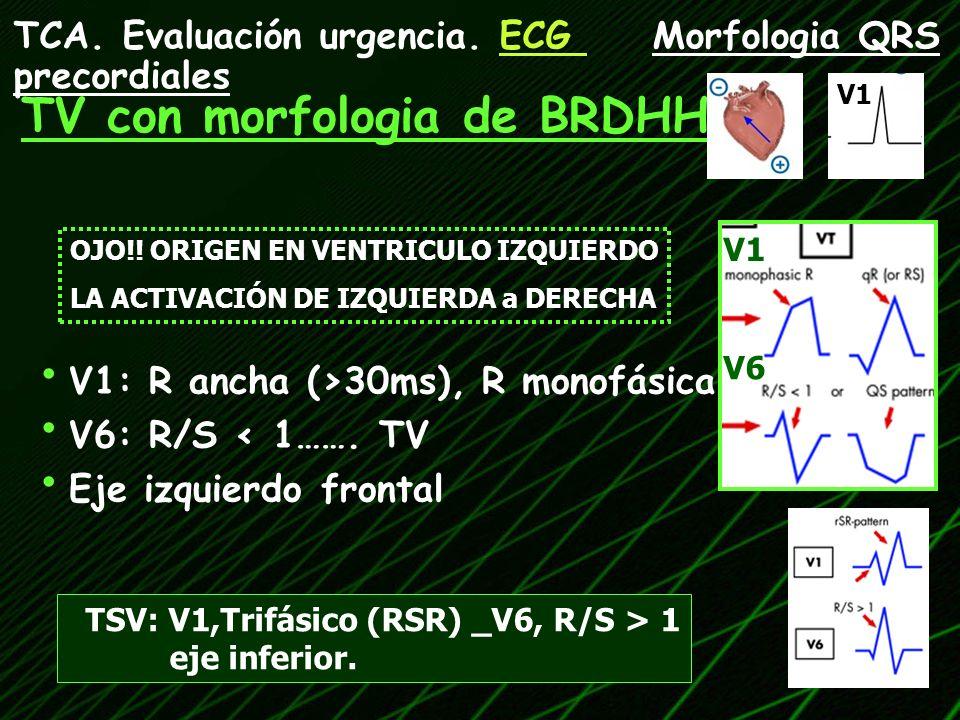 V1: R ancha (>30ms), R monofásica ó qR V6: R/S < 1……. TV Eje izquierdo frontal OJO!! ORIGEN EN VENTRICULO IZQUIERDO LA ACTIVACIÓN DE IZQUIERDA a DEREC