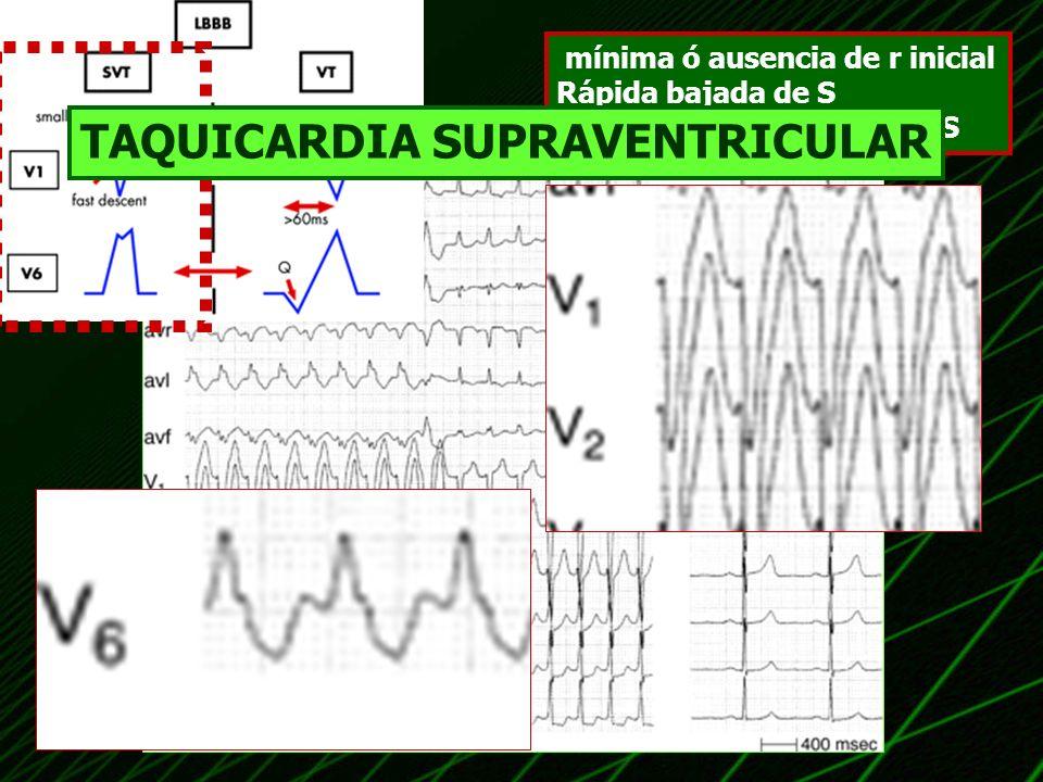 mínima ó ausencia de r inicial Rápida bajada de S corto intervalo a nadir de S TAQUICARDIA SUPRAVENTRICULAR