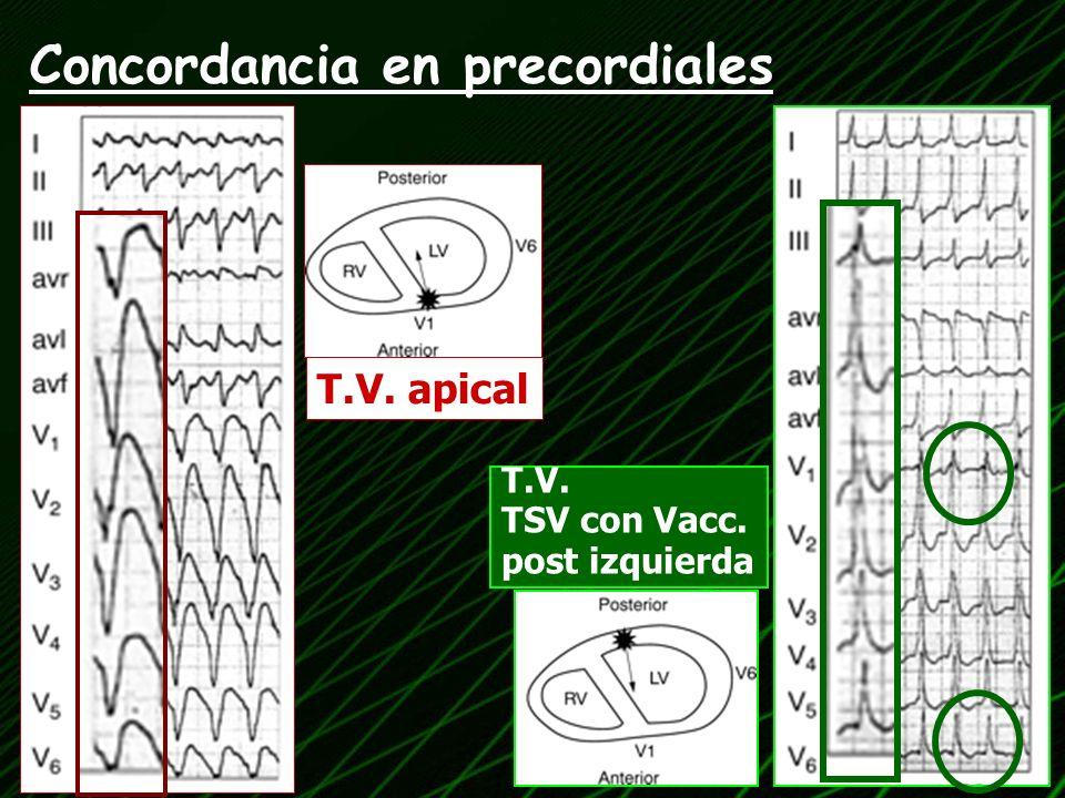 T.V. apical T.V. TSV con Vacc. post izquierda Concordancia en precordiales
