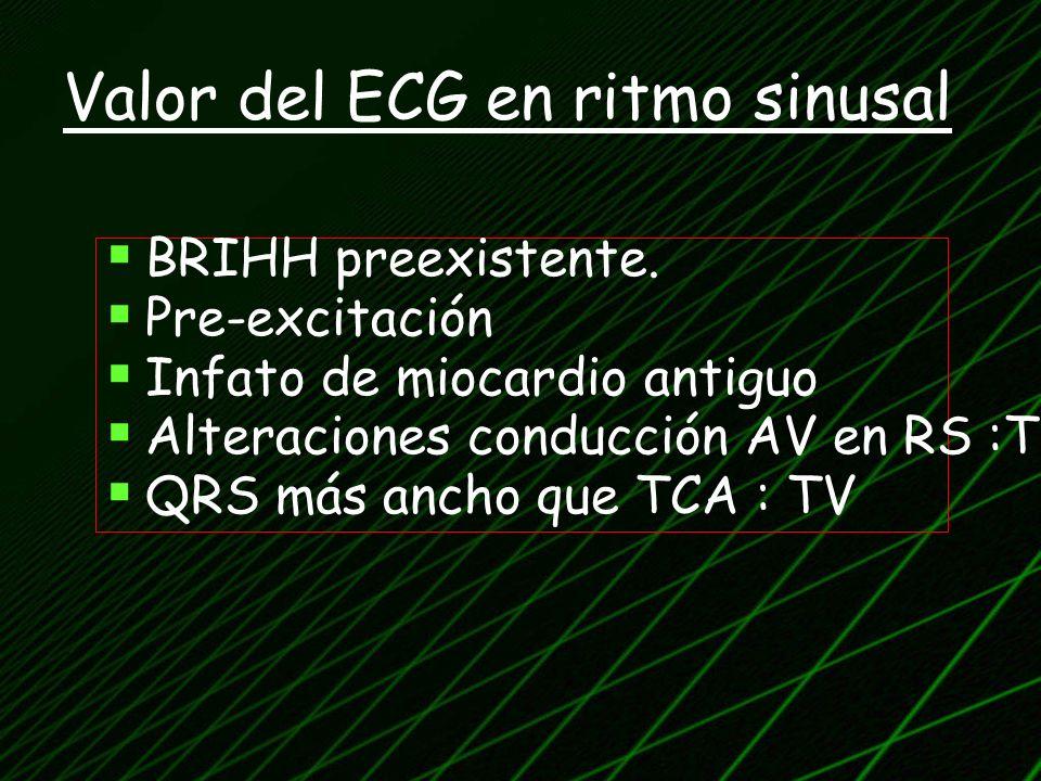 Valor del ECG en ritmo sinusal BRIHH preexistente. Pre-excitación Infato de miocardio antiguo Alteraciones conducción AV en RS :TV QRS más ancho que T