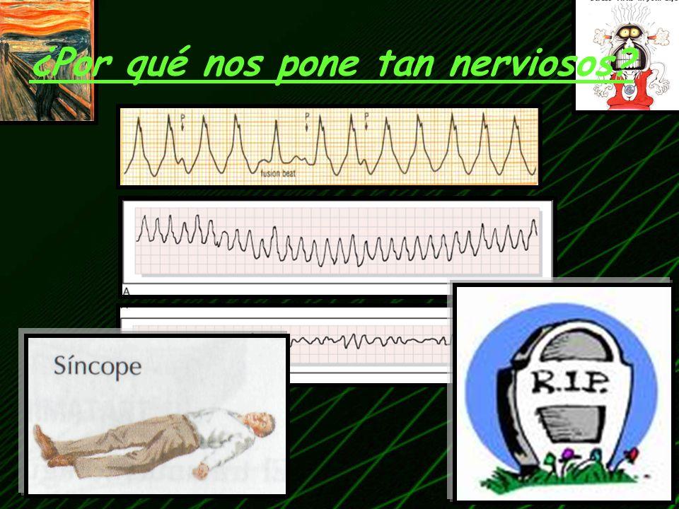 TAQUICARDIA DE QRS ANCHO (TCA) TAQUICARDIA VENTRICULAR Qué son.