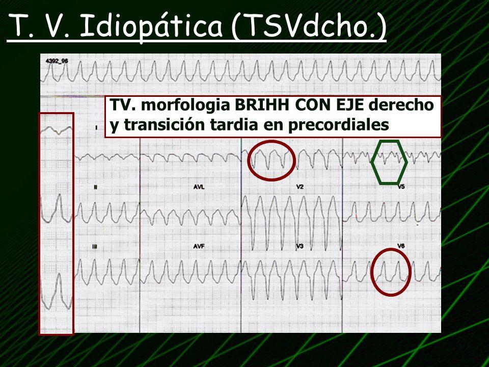 TV. morfologia BRIHH CON EJE derecho y transición tardia en precordiales
