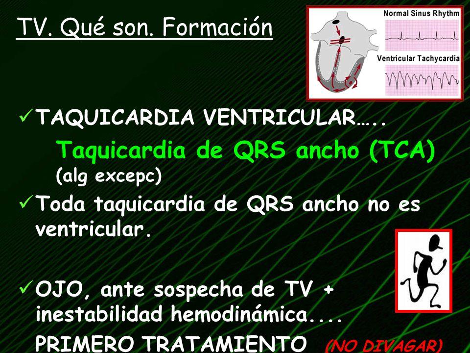 TAQUICARDIA VENTRICULAR….. Taquicardia de QRS ancho (TCA) (alg excepc) Toda taquicardia de QRS ancho no es ventricular. OJO, ante sospecha de TV + ine