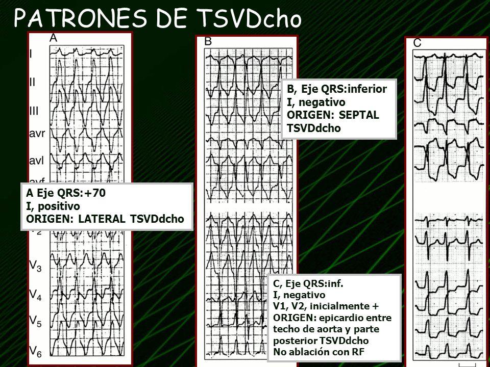 PATRONES DE TSVDcho A Eje QRS:+70 I, positivo ORIGEN: LATERAL TSVDdcho B, Eje QRS:inferior I, negativo ORIGEN: SEPTAL TSVDdcho C, Eje QRS:inf. I, nega