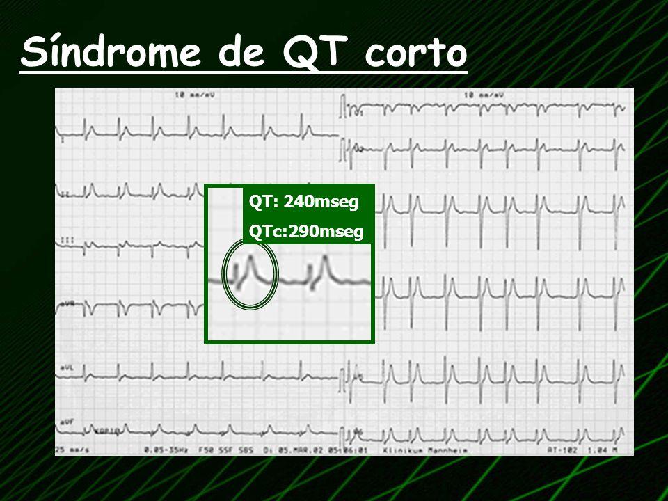 QT: 240mseg QTc:290mseg