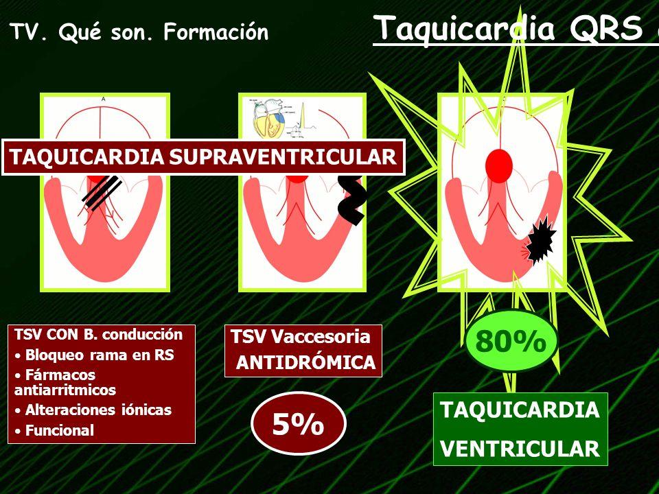 TV inestable MALA TOLERANCIA: Hipotensión Angina Insuficiencia cardiaca CV ELÉCTRICA SINCRONIZADA 50-100 J.