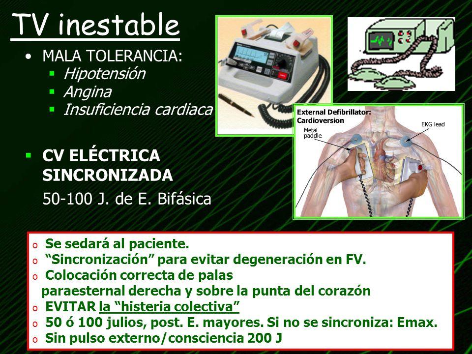 TV inestable MALA TOLERANCIA: Hipotensión Angina Insuficiencia cardiaca CV ELÉCTRICA SINCRONIZADA 50-100 J. de E. Bifásica o Se sedará al paciente. o