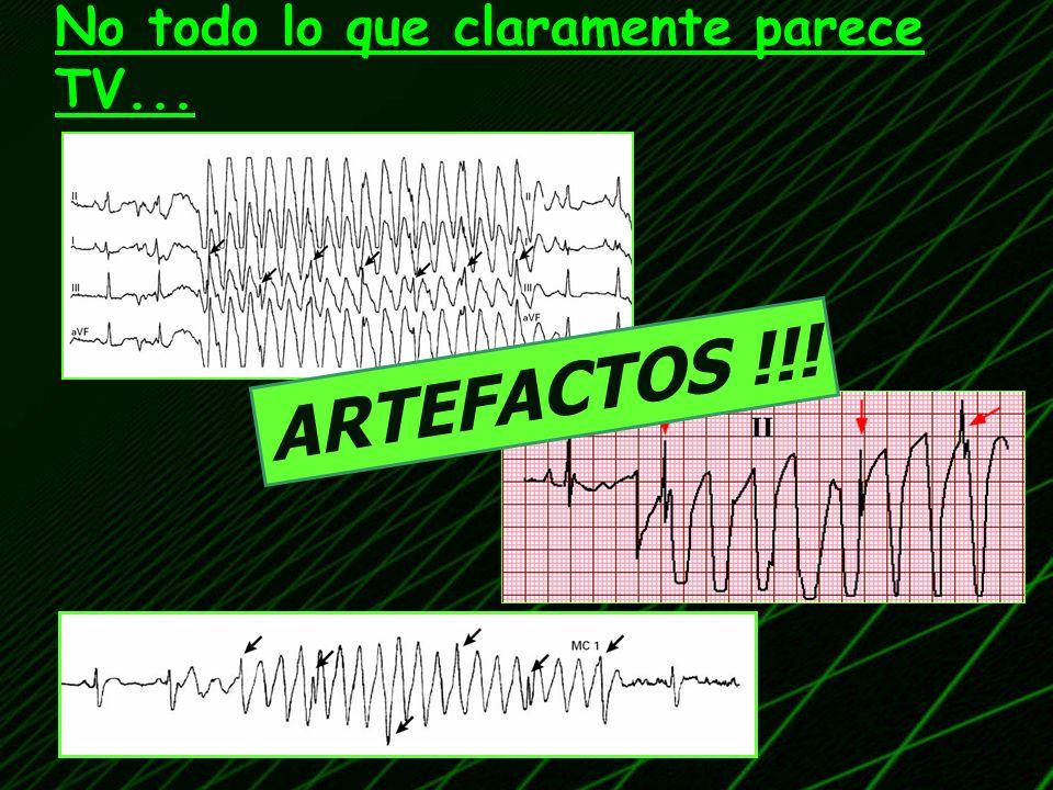 IM ANTERIOR IM INFERIOR Indicadores de escara en miocardio (IM) Están presentes en el 40% de las TV despues de IM Complejos QR TCA.