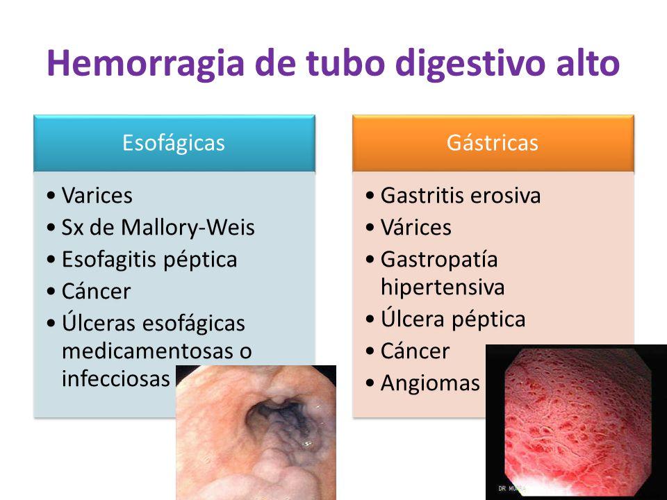 Hemorragia de tubo digestivo alto Esofágicas Varices Sx de Mallory-Weis Esofagitis péptica Cáncer Úlceras esofágicas medicamentosas o infecciosas Gást