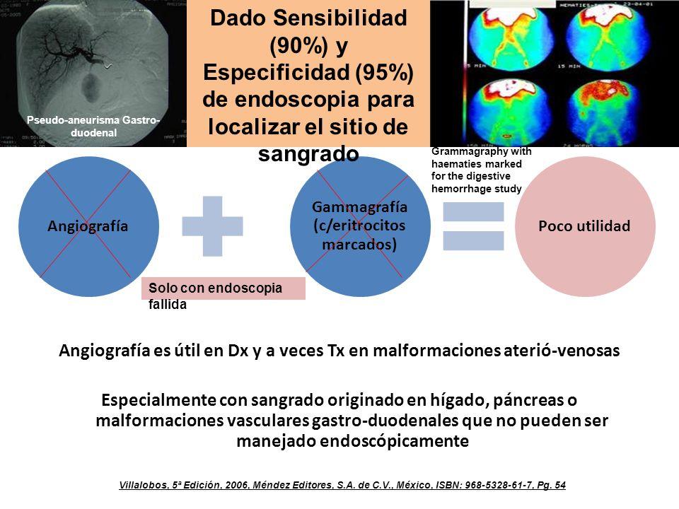 Angiografía es útil en Dx y a veces Tx en malformaciones aterió-venosas Especialmente con sangrado originado en hígado, páncreas o malformaciones vasculares gastro-duodenales que no pueden ser manejado endoscópicamente Villalobos, 5ª Edición, 2006, Méndez Editores, S.A.