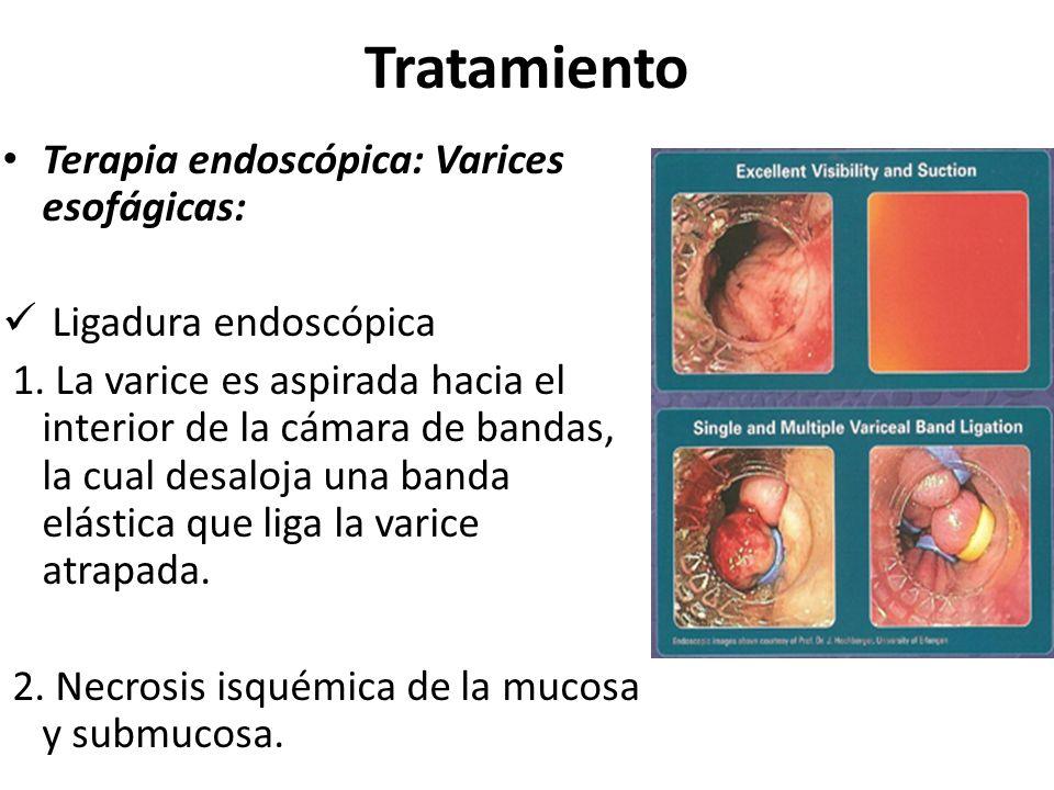 Tratamiento Terapia endoscópica: Varices esofágicas: Ligadura endoscópica 1. La varice es aspirada hacia el interior de la cámara de bandas, la cual d