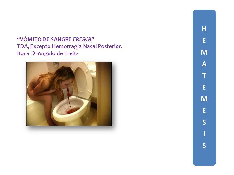 HEMATEMESISHEMATEMESIS VÒMITO DE SANGRE FRESCA TDA, Excepto Hemorragia Nasal Posterior.