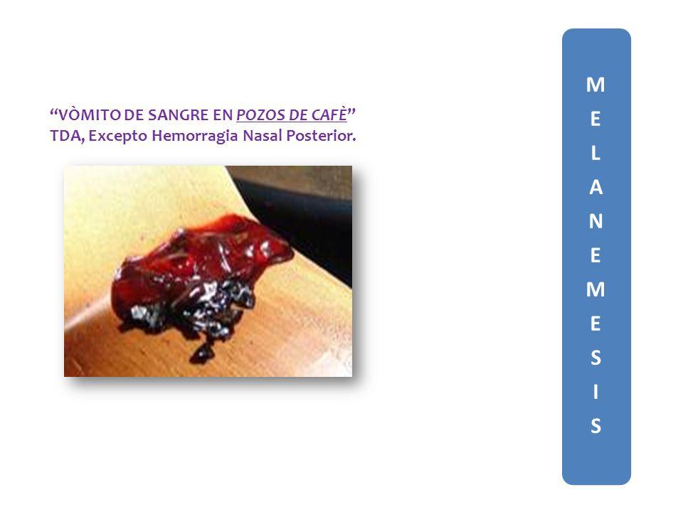 MELANEMESISMELANEMESIS VÒMITO DE SANGRE EN POZOS DE CAFÈ TDA, Excepto Hemorragia Nasal Posterior.