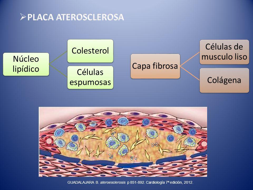 Núcleo lipídico Colesterol Células espumosas Capa fibrosa Células de musculo liso Colágena GUADALAJARA B. ateroesclerosis p 851-892. Cardiología 7ª ed