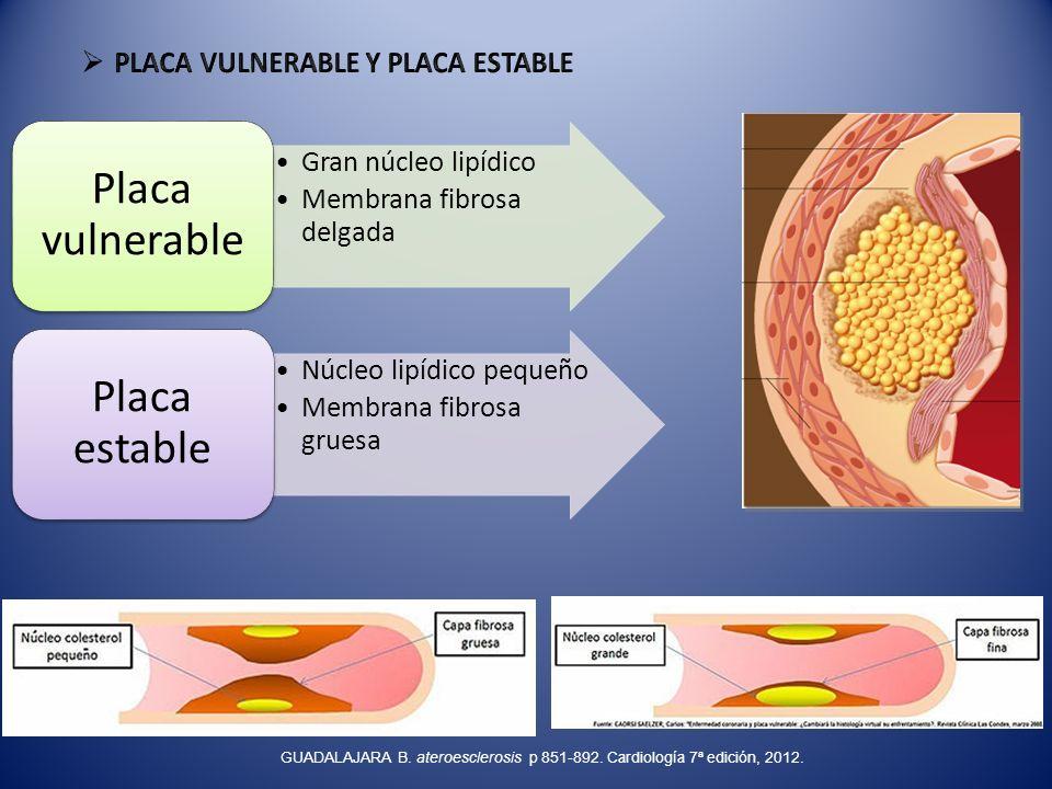 Gran núcleo lipídico Membrana fibrosa delgada Placa vulnerable Núcleo lipídico pequeño Membrana fibrosa gruesa Placa estable GUADALAJARA B. ateroescle