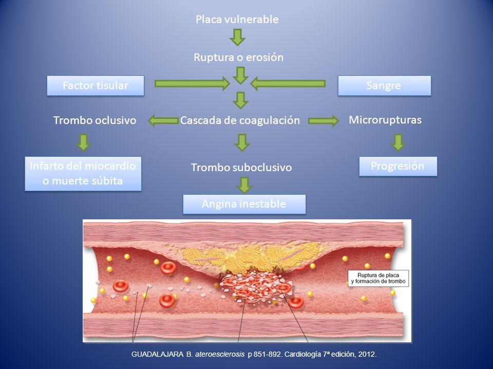 Placa vulnerable Ruptura o erosión Cascada de coagulación Trombo suboclusivo Angina inestable Factor tisular Sangre Trombo oclusivo Infarto del miocar
