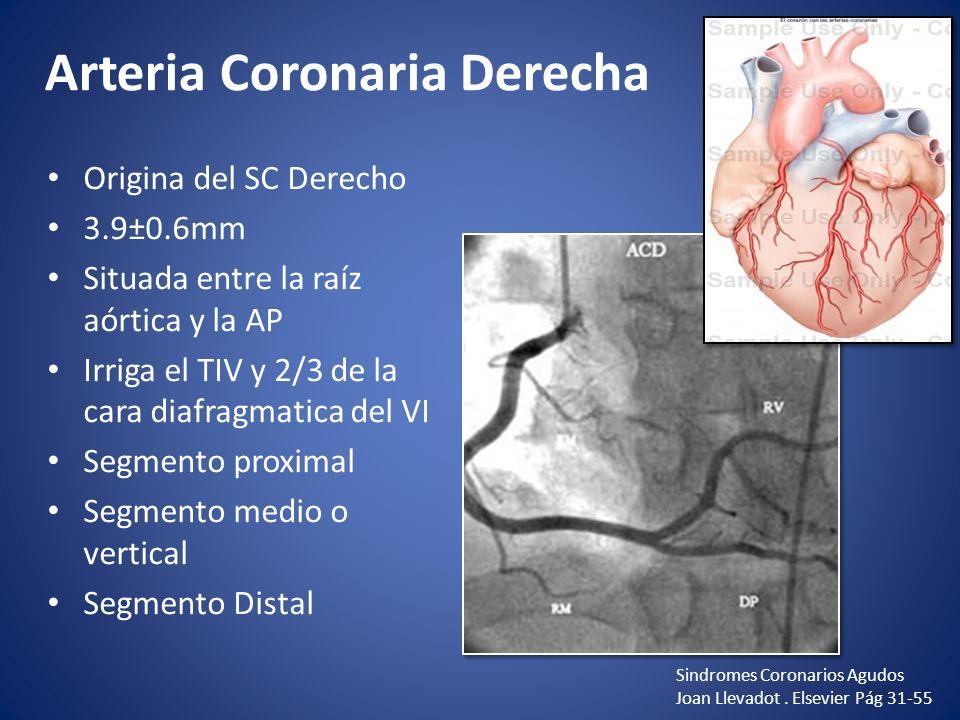Arteria Coronaria Derecha Origina del SC Derecho 3.9±0.6mm Situada entre la raíz aórtica y la AP Irriga el TIV y 2/3 de la cara diafragmatica del VI S