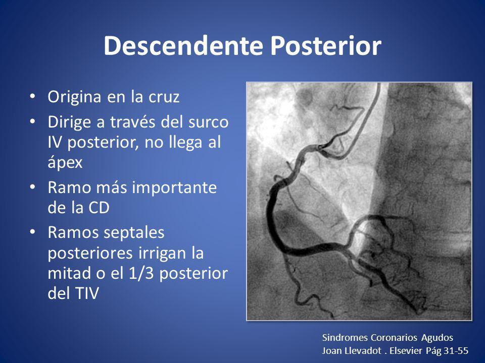 Descendente Posterior Origina en la cruz Dirige a través del surco IV posterior, no llega al ápex Ramo más importante de la CD Ramos septales posterio