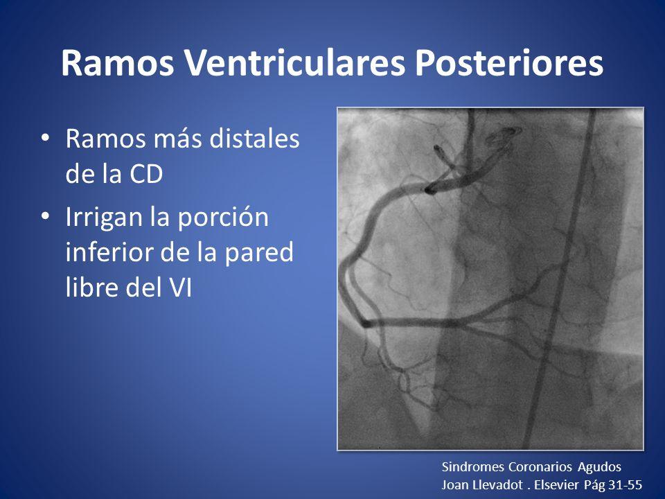 Ramos Ventriculares Posteriores Ramos más distales de la CD Irrigan la porción inferior de la pared libre del VI Sindromes Coronarios Agudos Joan Llev
