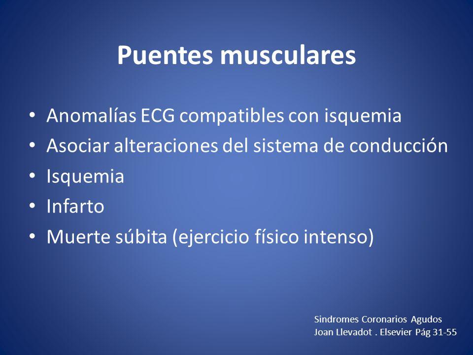 Puentes musculares Anomalías ECG compatibles con isquemia Asociar alteraciones del sistema de conducción Isquemia Infarto Muerte súbita (ejercicio fís