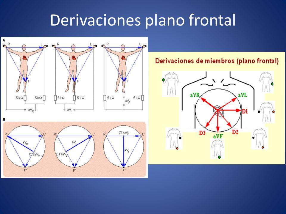 Derivaciones plano frontal