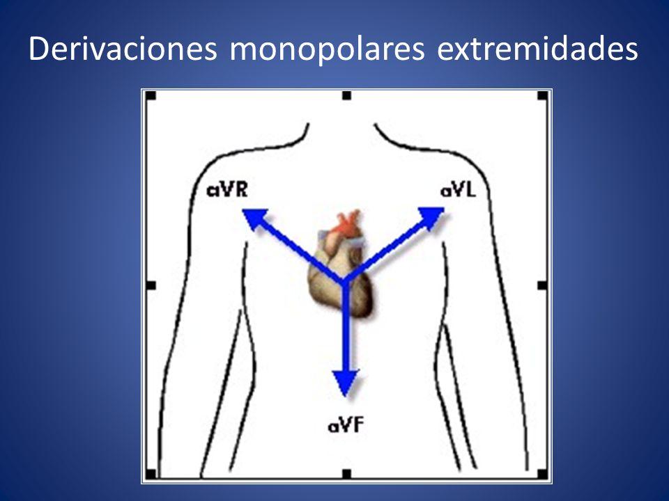 Derivaciones monopolares extremidades