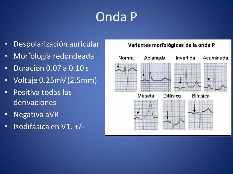 Onda P Despolarización auricular Morfología redondeada Duración 0.07 a 0.10 s Voltaje 0.25mV (2.5mm) Positiva todas las derivaciones Negativa aVR Isod