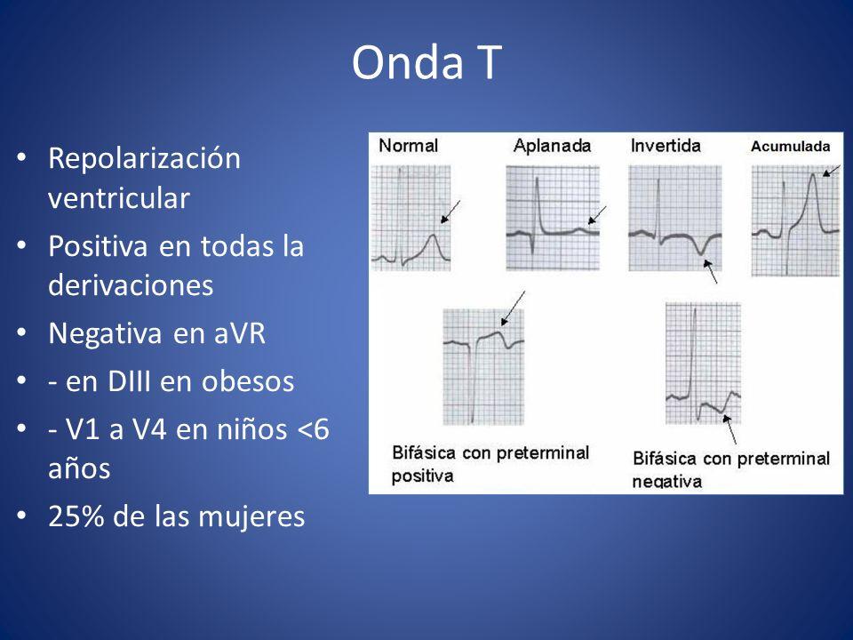 Onda T Repolarización ventricular Positiva en todas la derivaciones Negativa en aVR - en DIII en obesos - V1 a V4 en niños <6 años 25% de las mujeres