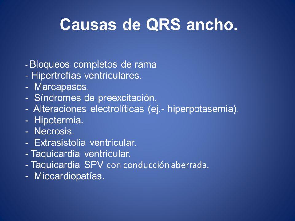 Causas de QRS ancho. - Bloqueos completos de rama - Hipertrofias ventriculares. - Marcapasos. - Síndromes de preexcitación. - Alteraciones electrolíti