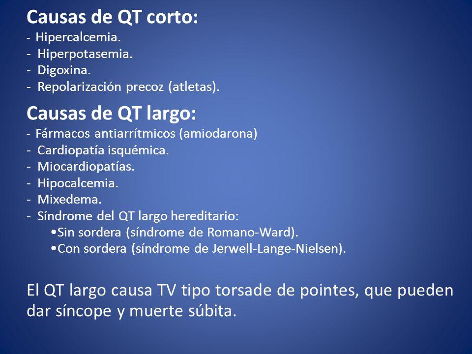 Causas de QT corto: - Hipercalcemia. - Hiperpotasemia. - Digoxina. - Repolarización precoz (atletas). Causas de QT largo: - Fármacos antiarrítmicos (a